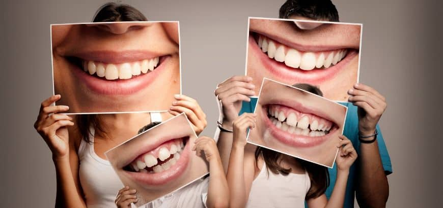 diffferent-types-of-teeth
