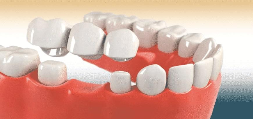 Dental Crowns in Gurgaon