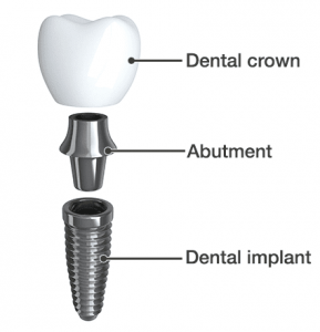 tooth extraction cost in gurgaon