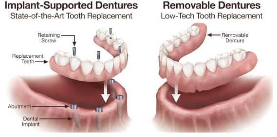 Removal dentures