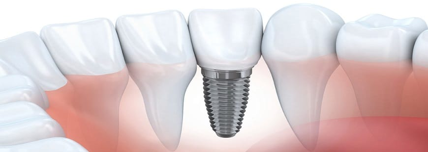 Single tooth dental implants