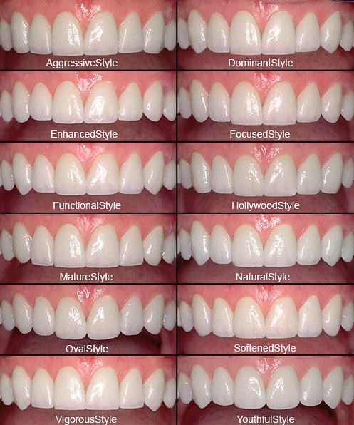 smile dental clinic gurgaon