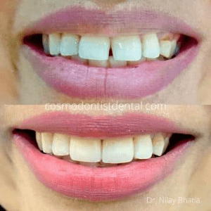 tooth gap before after