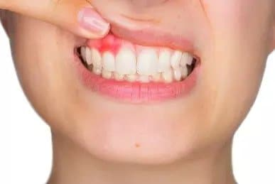 Things You Should Know Of Gum Diseases