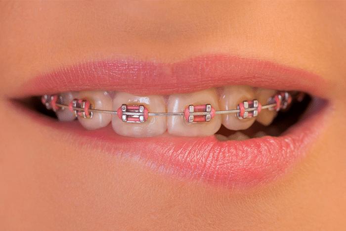 braces treatment in gurgaon