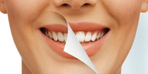 best dental clinic in Gurgaon