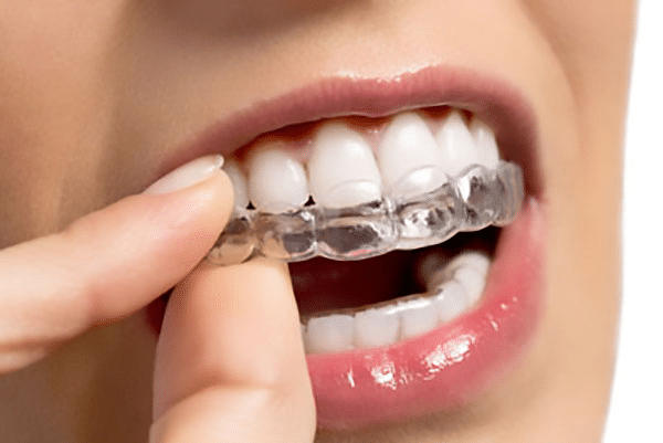 What is Invisalign and Who is not a good candidate for Invisalign?