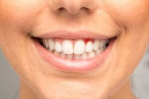 How Can Gum Disease Be Prevented?