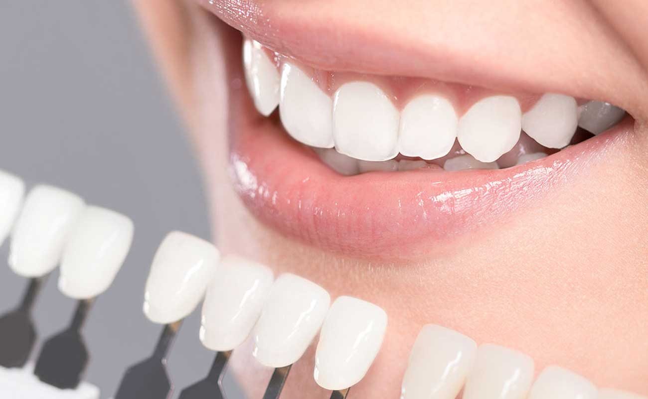 What happens during teeth whitening? How long does the treatment take?