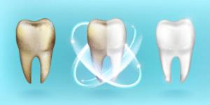 teeth whitening in gurgaon