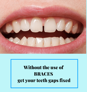 Without the use of braces, get your teeth gaps fixed