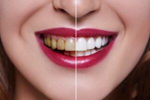 dental clinic in gurgaon,top dentist in gurgaon,smile dental clinic gurgaon
