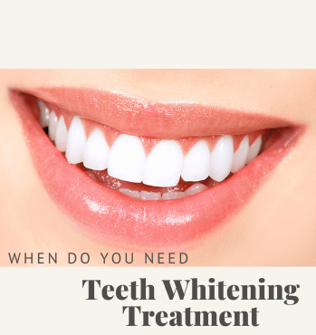 When Do You Need Teeth Whitening Treatment