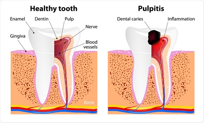 When do you need to see a doctor for a root canal?